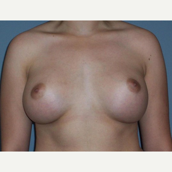 Breast Augmentation after 3560795