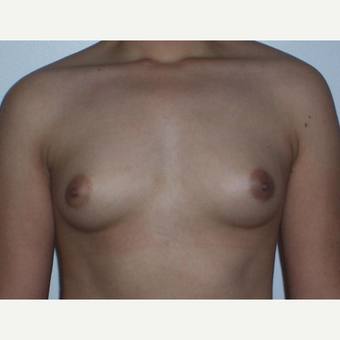 Breast Augmentation before 3560795