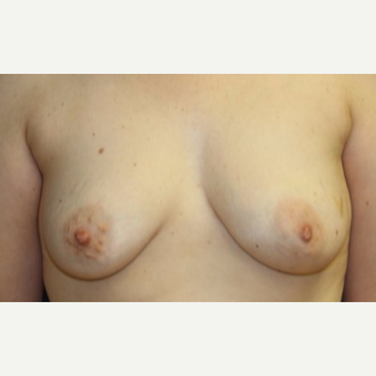 43 year old woman with a bilateral Breast Reconstruction before 3522653