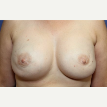 43 year old woman with a bilateral Breast Reconstruction after 3522653