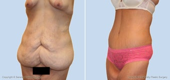Extended Abdominoplasty before 529298