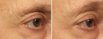 Ulthera Laser Skin Tightening before 346268