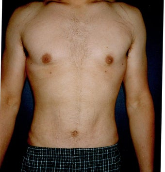 Vaser Liposuction  after 921621