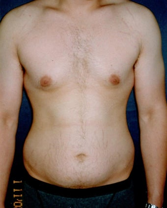 Vaser Liposuction  before 921621