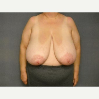 55-64 year old woman treated with Breast Reduction before 1576389