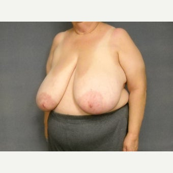 55-64 year old woman treated with Breast Reduction 1576389