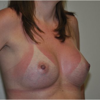35-44 year old woman treated with Breast Augmentation after 3071005
