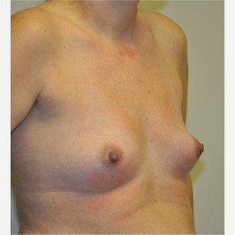 35-44 year old woman treated with Breast Augmentation before 3071005