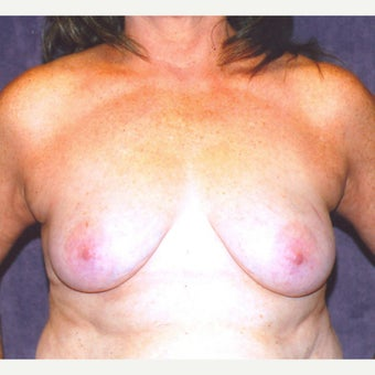 Breast reduction and lift before 2078770