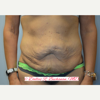 35-44 year old woman treated with Tummy Tuck before 3242261