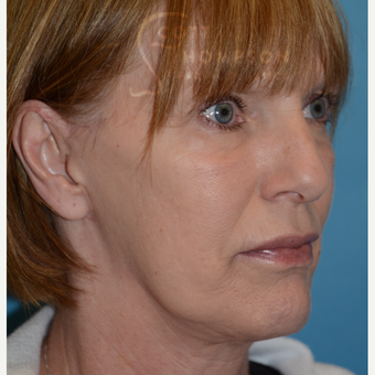 55-64 year old woman treated with MACS Facelift after 3664215