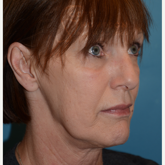 55-64 year old woman treated with MACS Facelift before 3664215