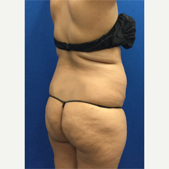 35-44 year old woman treated with Brazilian Butt Lift before 3698011