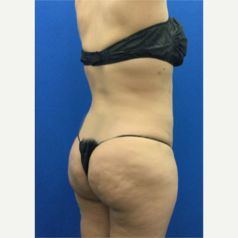 35-44 year old woman treated with Brazilian Butt Lift after 3698011