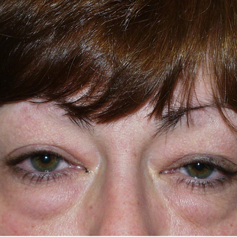 45-54 year old woman treated with Eyelid Surgery before 3384084