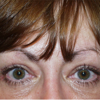 45-54 year old woman treated with Eyelid Surgery after 3384084