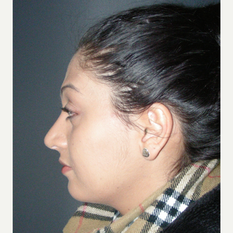 18-24 year old woman treated with Rhinoplasty after 3686960