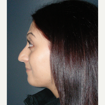 18-24 year old woman treated with Rhinoplasty before 3686960