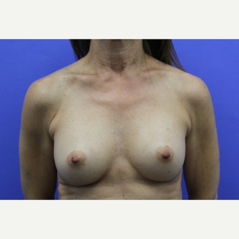 45-54 year old woman treated with Breast Augmentation after 3201254
