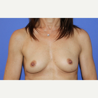 45-54 year old woman treated with Breast Augmentation before 3201254