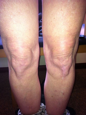 Laser Liposuction and Mixto CO2 laser of Knee  after 957804