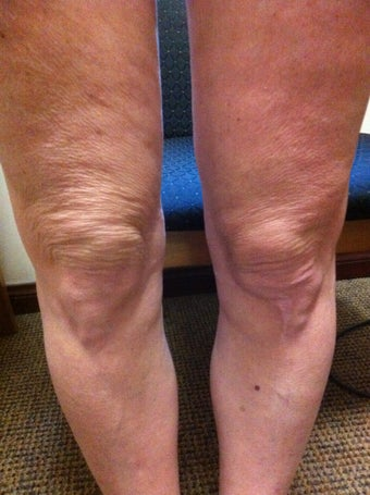 Laser Liposuction and Mixto CO2 laser of Knee  before 957804