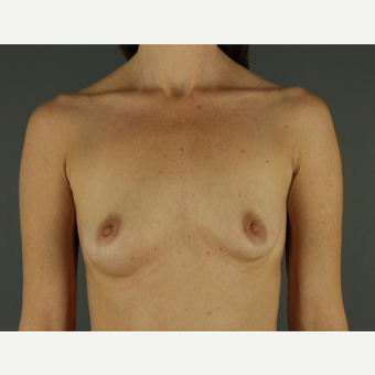 35-44 year old woman treated with Breast Implants before 3026487
