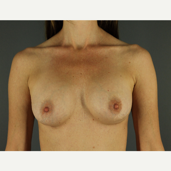 35-44 year old woman treated with Breast Implants after 3026487