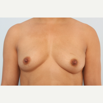 Breast Augmentation before 3340136