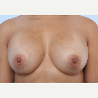 Breast Augmentation after 3340136