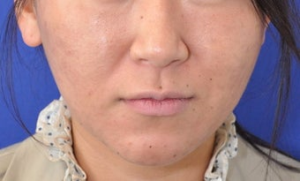 Botox Facial Contouring/Jawline Reduction after 307249
