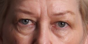 Before and after brow lift, and upper and lower blepharoplasty before 3188207