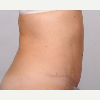 No Drain Tummy Tuck after 2486327
