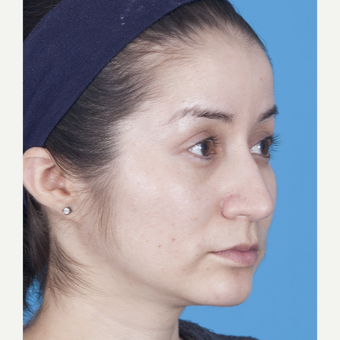 25-34 year old woman treated with Rhinoplasty after 3159515