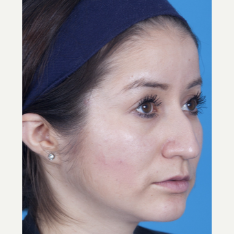 25-34 year old woman treated with Rhinoplasty before 3159515