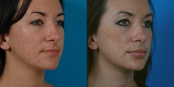 26-year-old woman treated with Facial Fat Transfer. after 574287