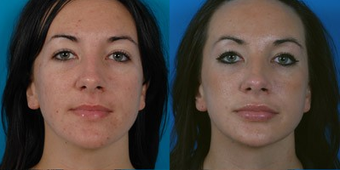 26-year-old woman treated with Facial Fat Transfer. before 574287