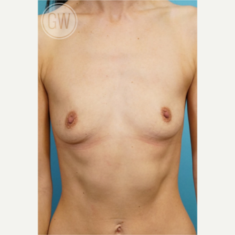 35-44 year old woman treated with Breast Augmentation before 3468799