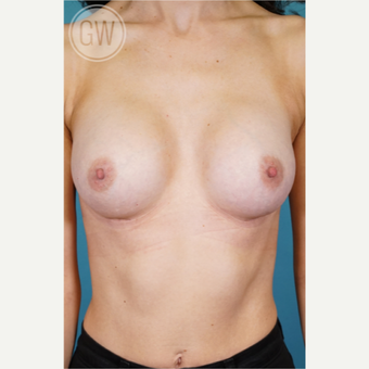 35-44 year old woman treated with Breast Augmentation after 3468799