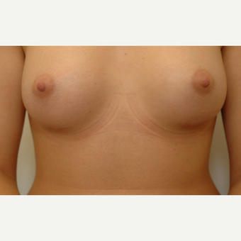 Breast Augmentation after 3108850