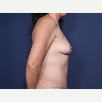 45-54 year old woman treated with Breast Lift with Implants (view 2 of 2) before 3186709