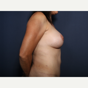 45-54 year old woman treated with Breast Lift with Implants (view 2 of 2) after 3186709