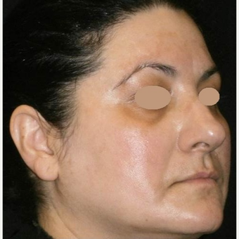 45-54 year old woman treated with Laser Treatment after 3089537