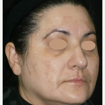 45-54 year old woman treated with Laser Treatment before 3089537