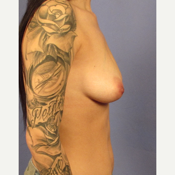25-34 year old woman treated with Breast Augmentation before 3095759