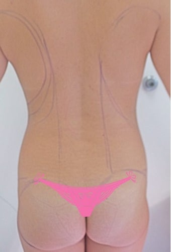 25-34 year old woman treated with Slim Lipo before 3496098