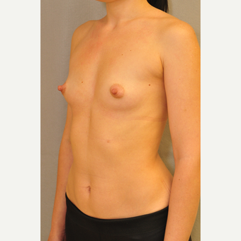 25-34 year old woman treated with Breast Augmentation before 3412464