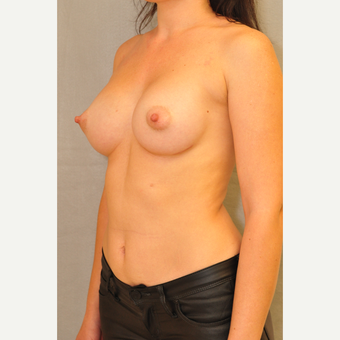 25-34 year old woman treated with Breast Augmentation after 3412464