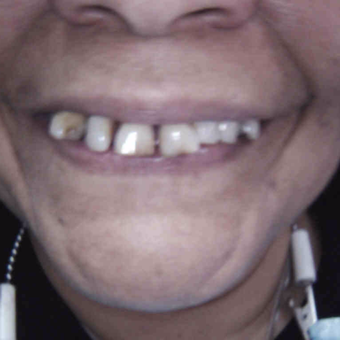 55-64 year old woman treated with Dental Crown before 2916029