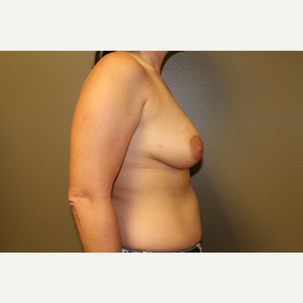35-44 year old woman treated with Breast Augmentation before 3659892